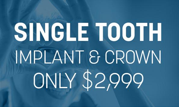 lovett dental missouri city single tooth implant special offers