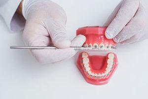 a doctor explaining dental braces tx process