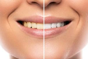 a peron experiening teeth whitening services missouri city texas