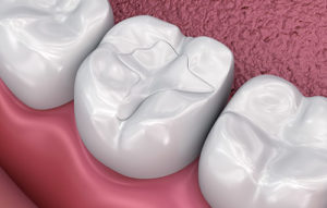 a rendering of dental fillings and sealants missouri city tx