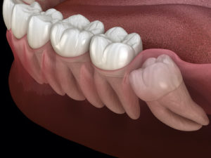 an impacted tooth pushes against other teeth, causing issues