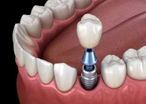 a simulation of dental implants being inserted